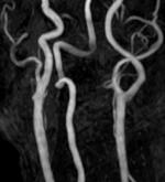 頸部MRA